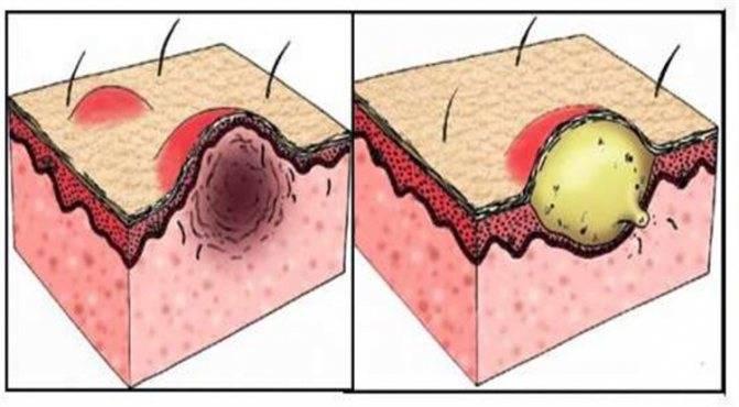 Синяки после биоревитализации – как лечить и быстро убрать проблему?