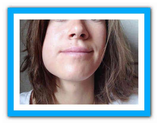Как снять боль в десне и отёк на щеке после удаления зуба