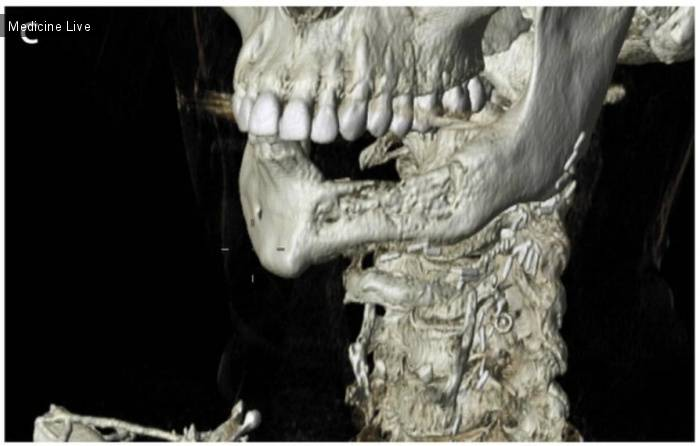 Насколько опасен некроз челюсти, как его определить и как вылечить?