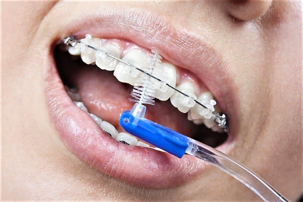 Как правильно чистить зубы с брекетами, чтоб не портились ни зубы, ни системы?