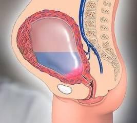 Причины появления серозометры в постменопаузе и методы лечения