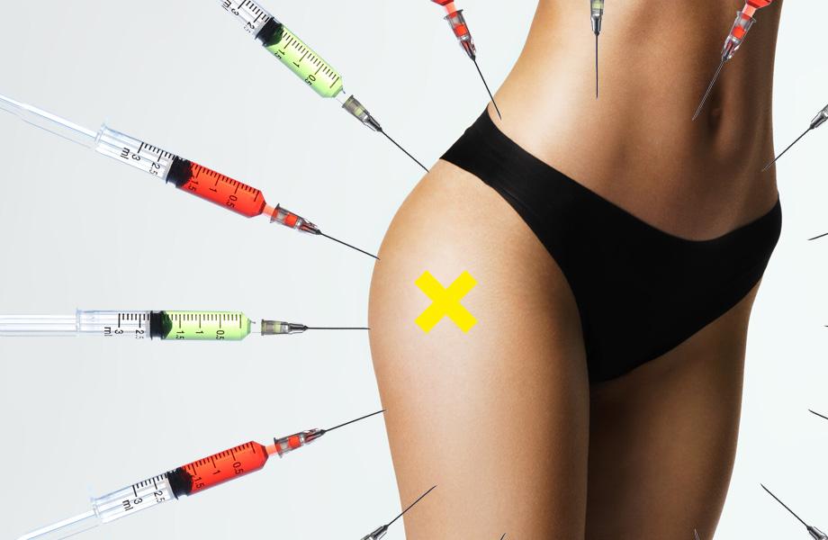Липолитики: описание и принцип действия препаратов, использование в эстетической косметологии