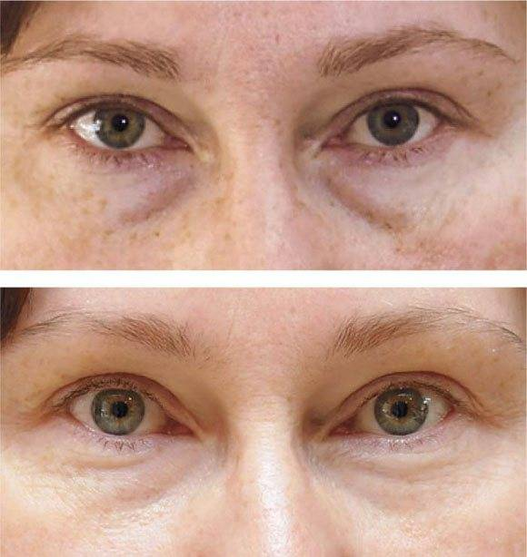 Коррекция морщин вокруг глаз