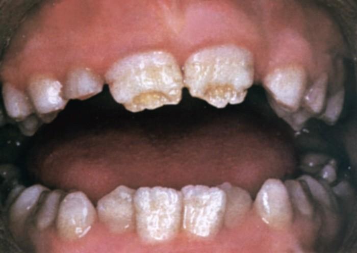 Лечение и отбеливание тетрациклиновых зубов