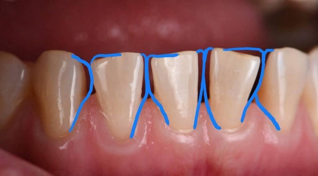 Техника проведения торусальной анестезии в стоматологии, зоны обезболивания