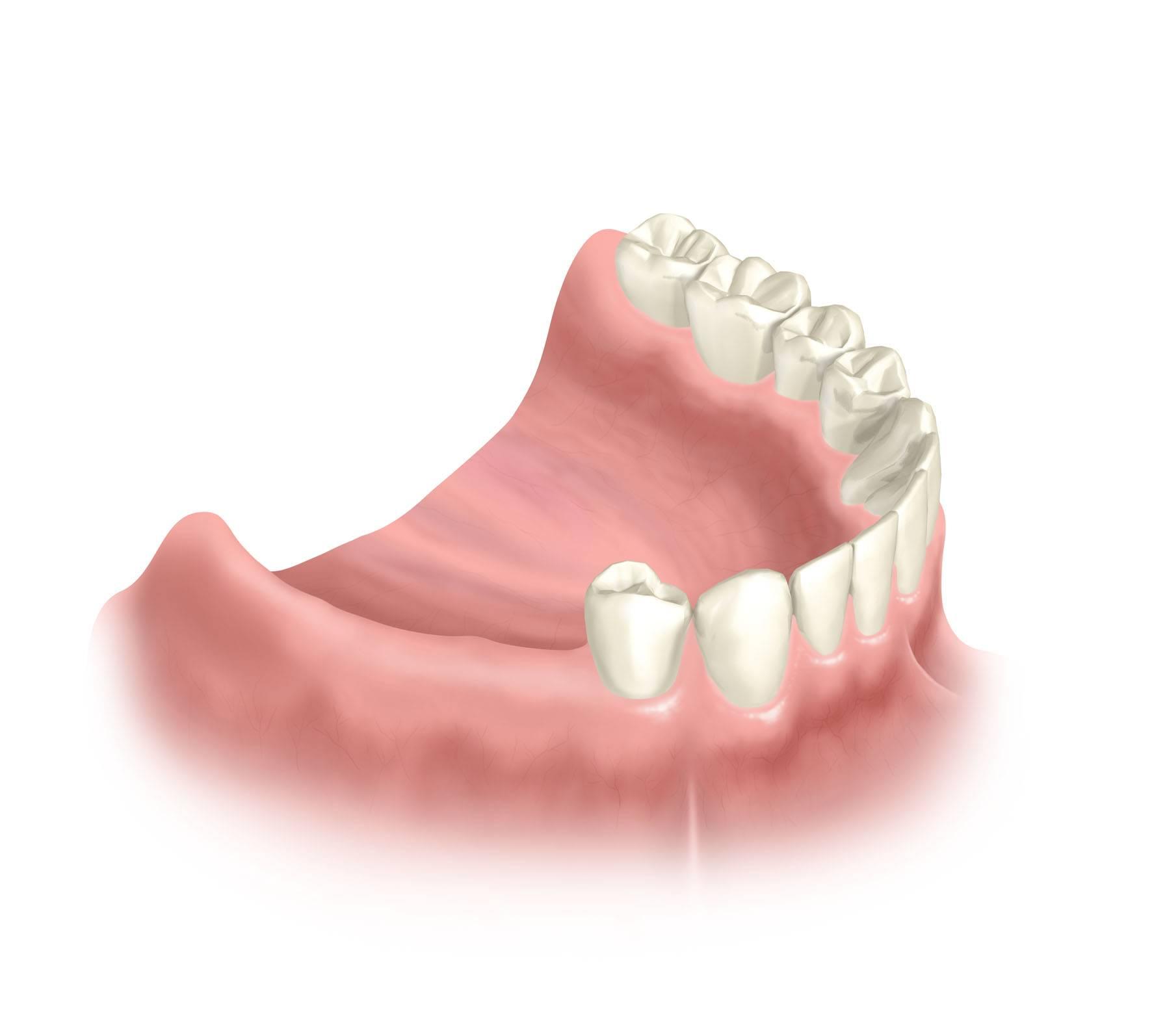Что лучше ставить — имплант или мост (коронку), если нет одного зуба, и чем они отличаются?