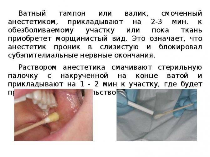 Анестезия в стоматологии: лечение зубов без страха и боли