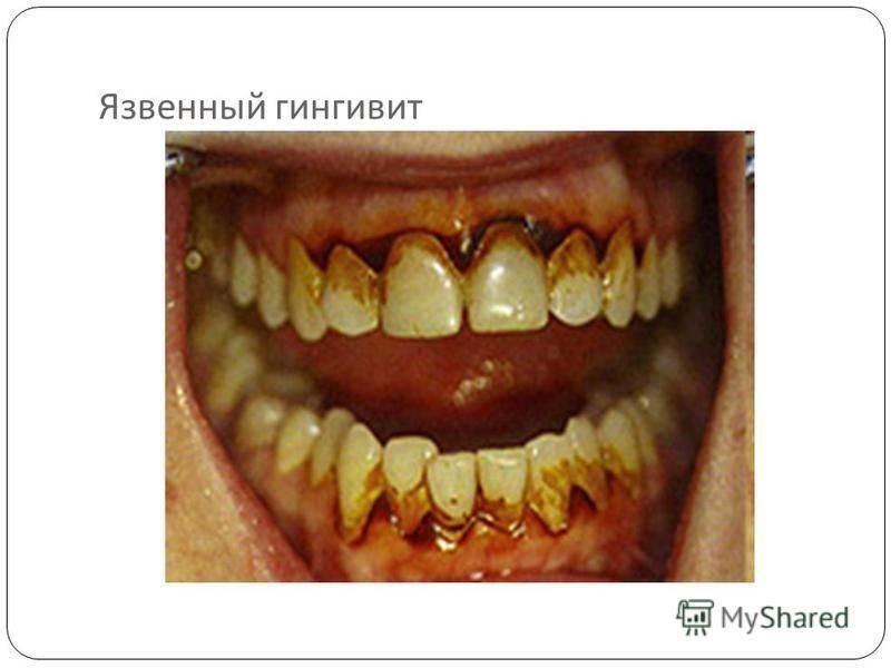 Некротический гингивостоматит