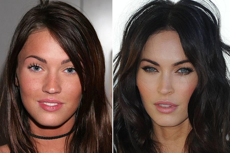 Звезды после пластических операций: фото до и после пластики