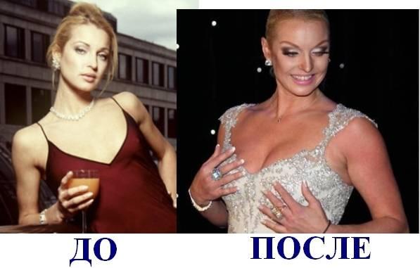 Настя ивлеева рассказала о своей пластике