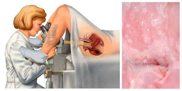 Кабинет патологии шейки матки: лечение эрозии шейки матки, в том числе при беременности