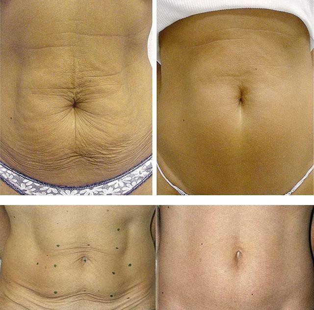 Как подтянуть кожу на животе после похудения и родов?