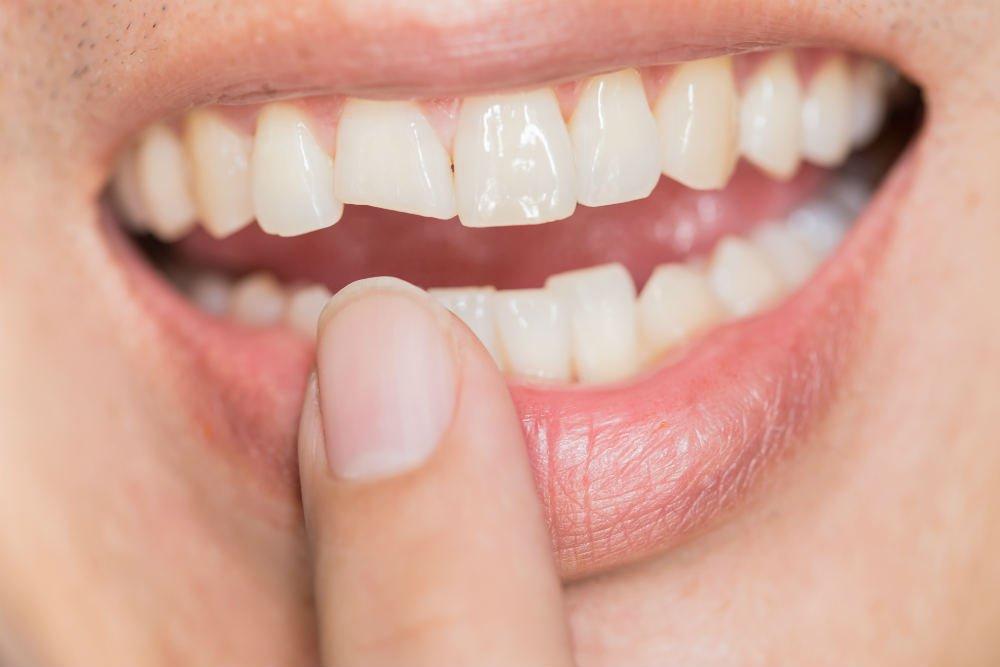 Народные приметы об отколовшемся зубе