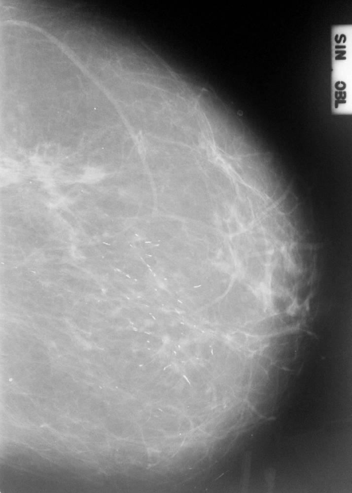 Скопление кальцинатов в молочных железах, традиционное и народное лечение