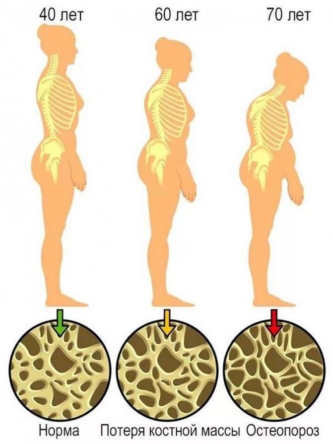 Препараты для профилактики остеопороза при климаксе