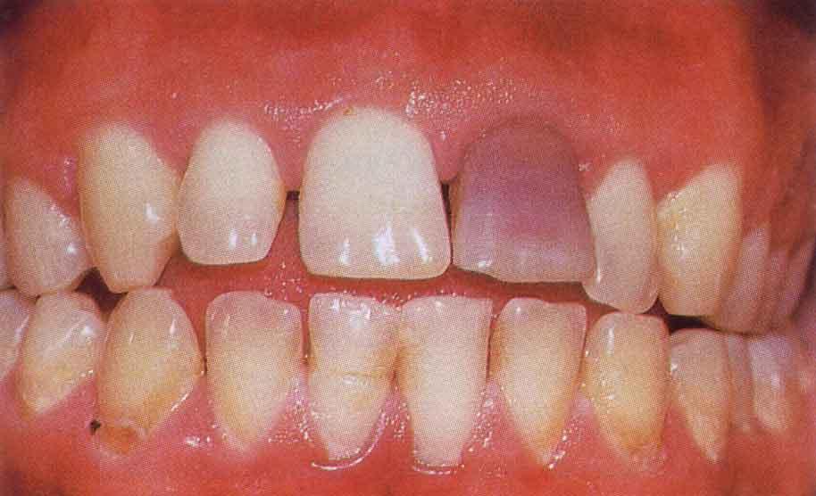 Особенности образования и терапии тетрациклиновых зубов