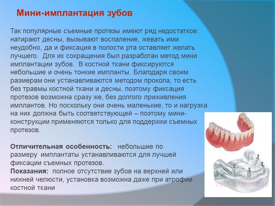 Установка имплантов зубов в верхнюю челюсть