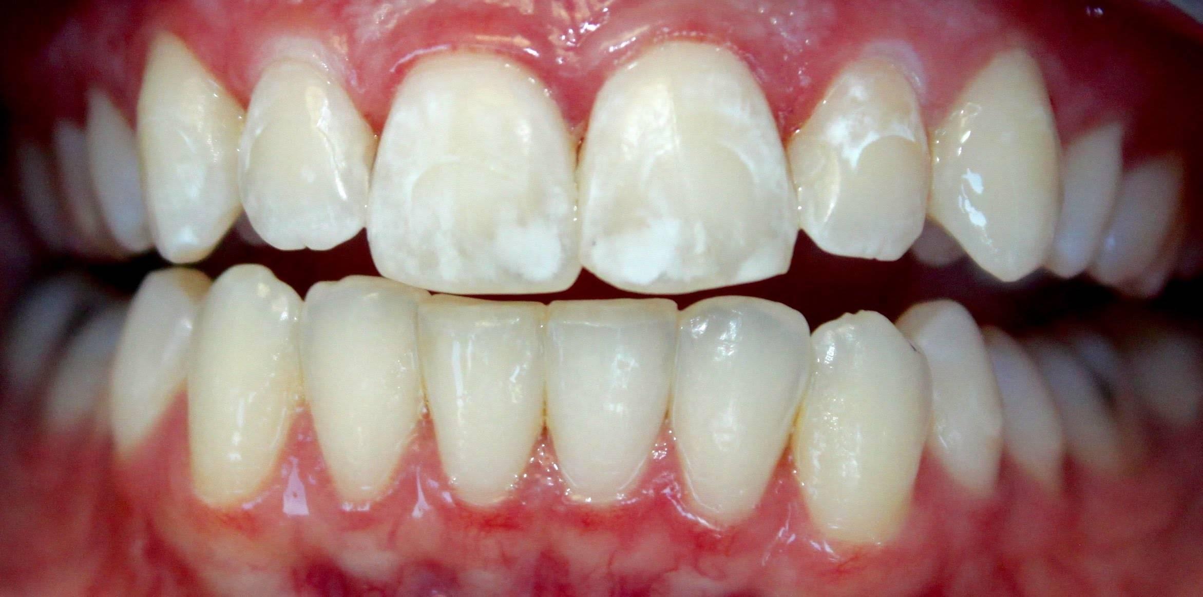 Восстановление эмали при тетрациклиновых зубах