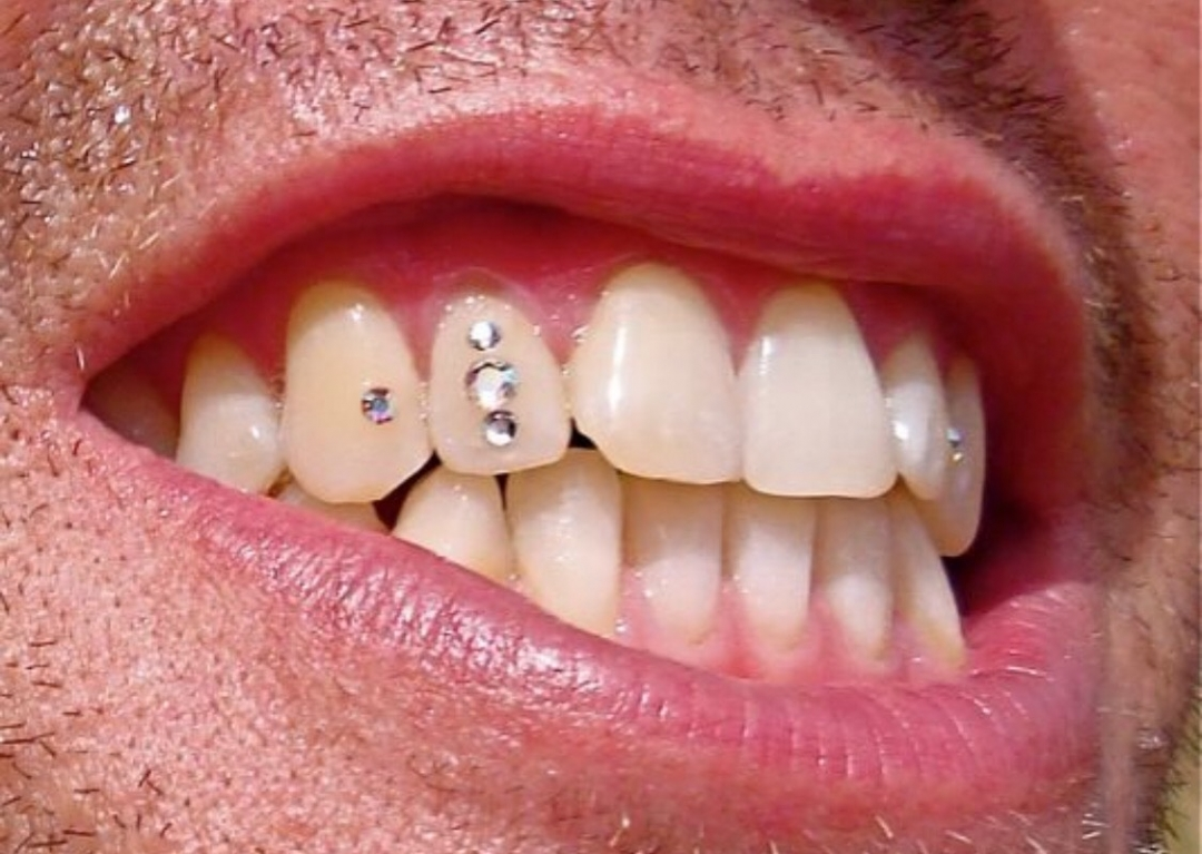 стразы на зубах фото последний
