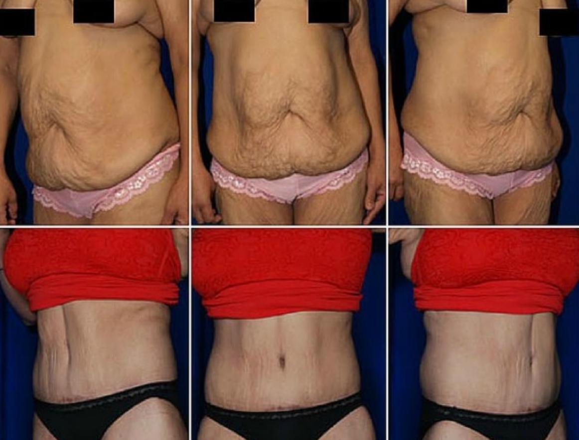 Как подтянуть кожу после похудения: 5 эффективных способов