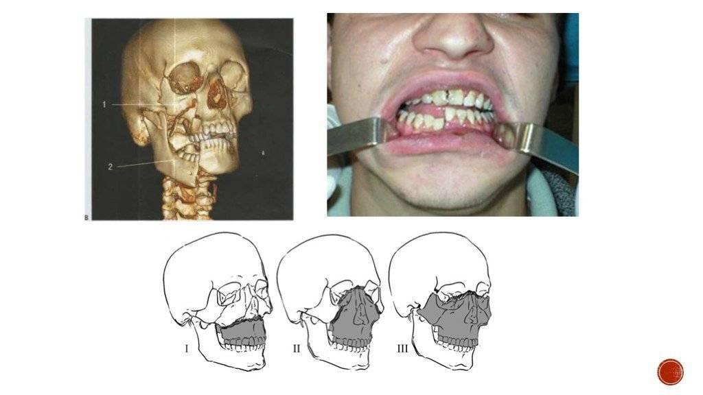 Перелом челюсти. причины, симптомы, виды, первая медицинская помощь и реабилитация
