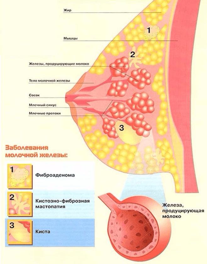 Информация о фиброзно кистозной мастопатии, которую должны знать все женщины