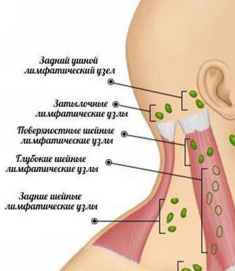 Воспаление лимфоузла под ухом