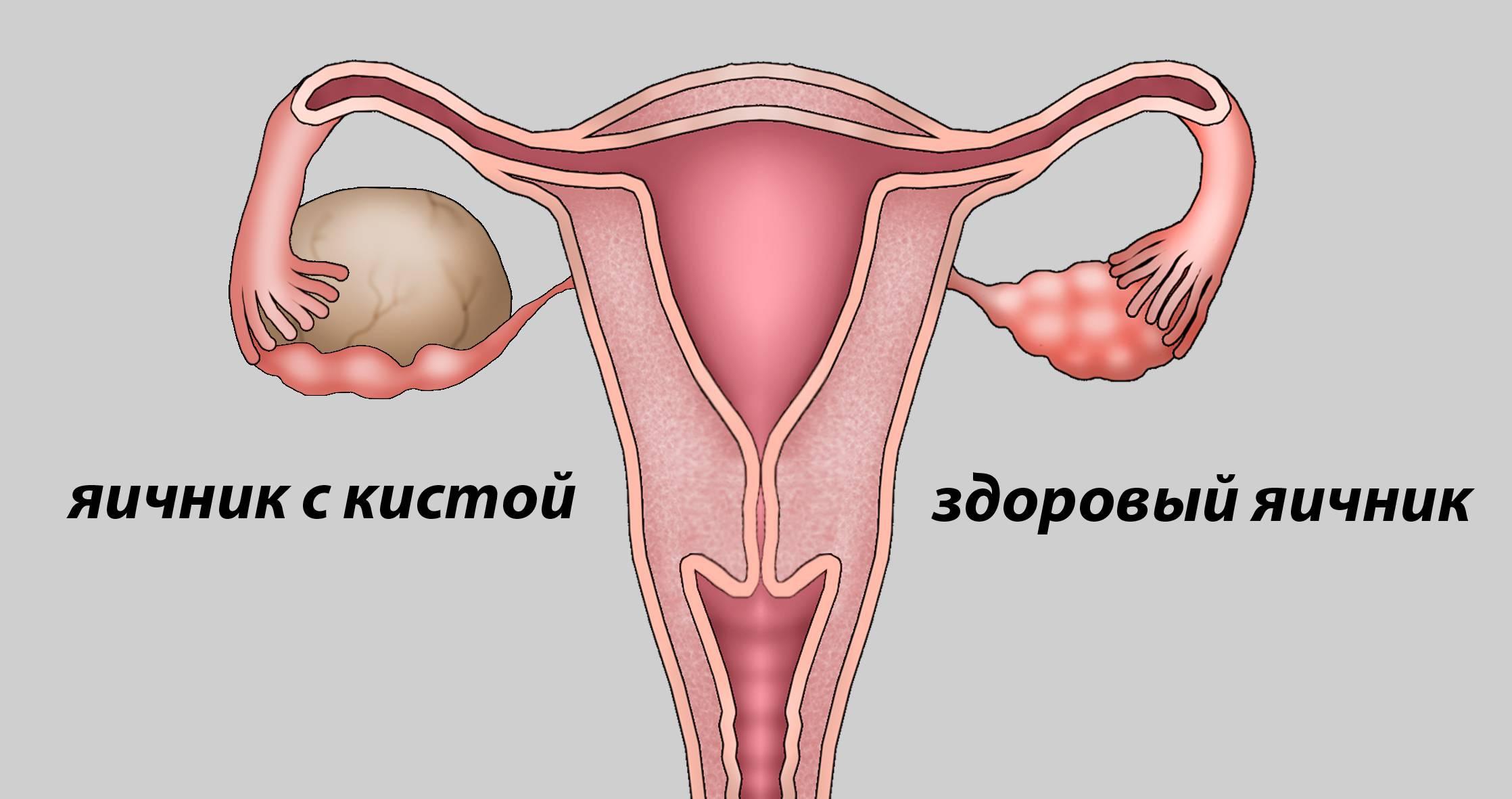 Какие последствия таит в себе киста яичника у женщин