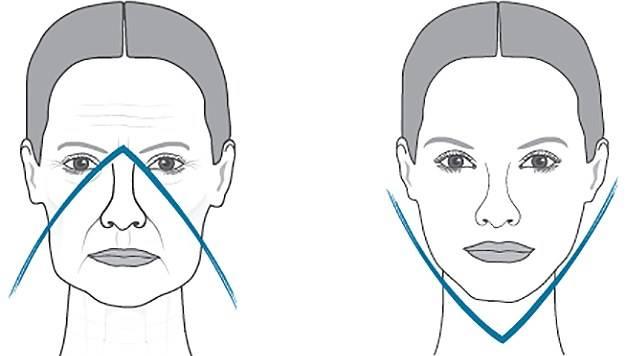 Делать ли контурную пластику лица филлерами: техника введения, стойкость эффекта и другие нюансы