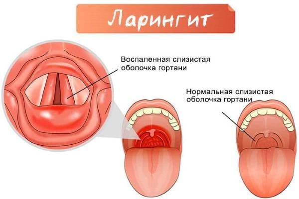 Ожог слизистой рта после стоматолога