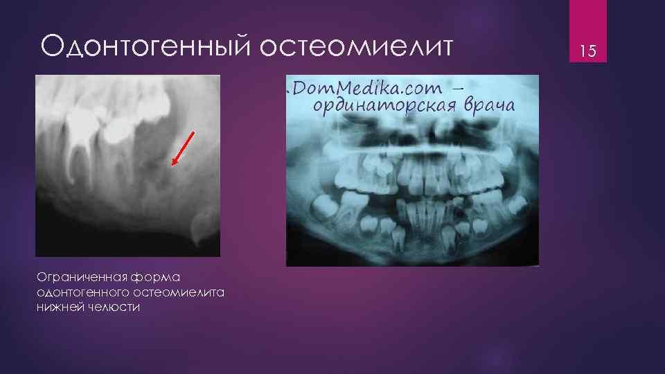 Признаки остеомиелита после удаления зуба