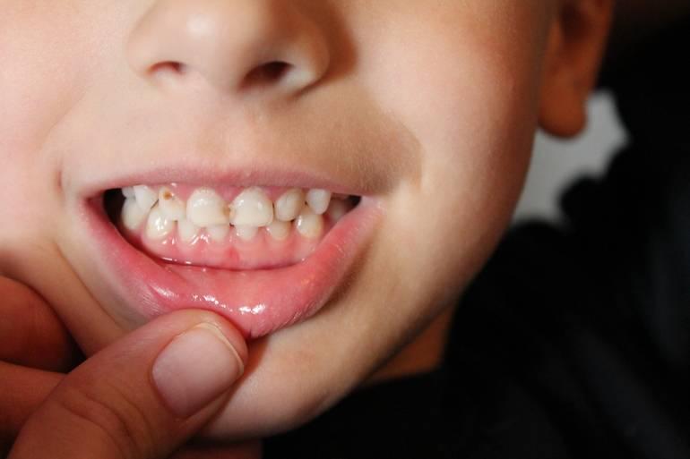 Когда заканчивается жизнь молочных зубов