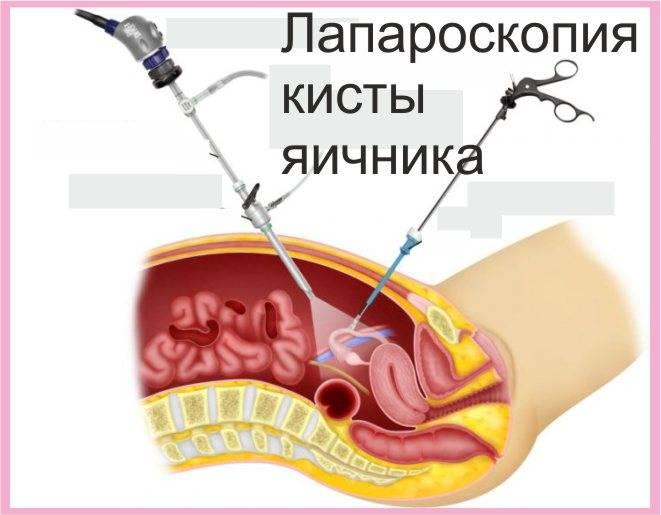 Диета после лапароскопии яичников