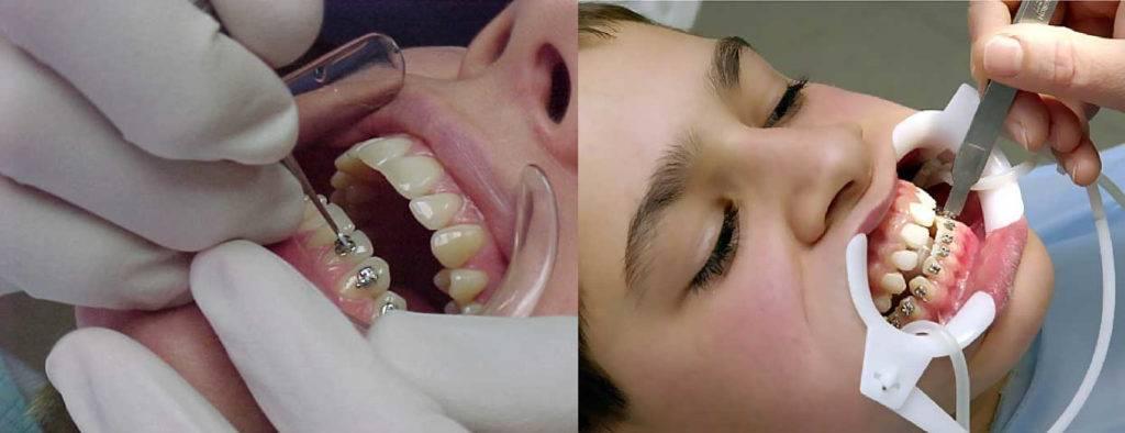 Что делать, когда болят зубы от брекетов?
