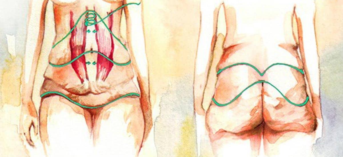 Торсопластика (круговая подтяжка тела)