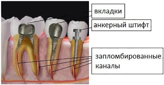Почему болит зуб после удаления штифта
