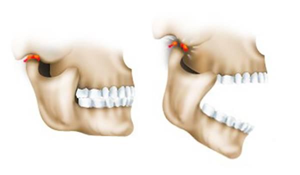 Вывих нижней челюсти: симптомы, лечение, как вправить самостоятельно