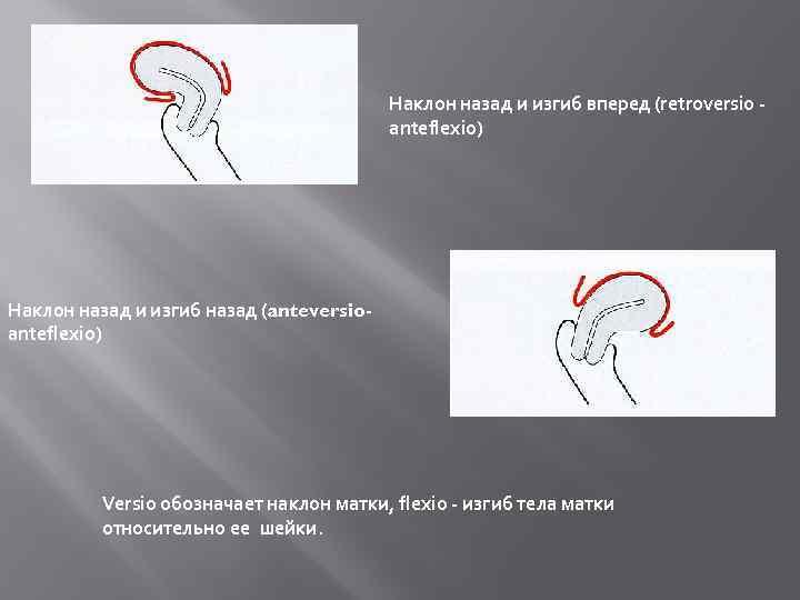 Положение матки anteflexio versio