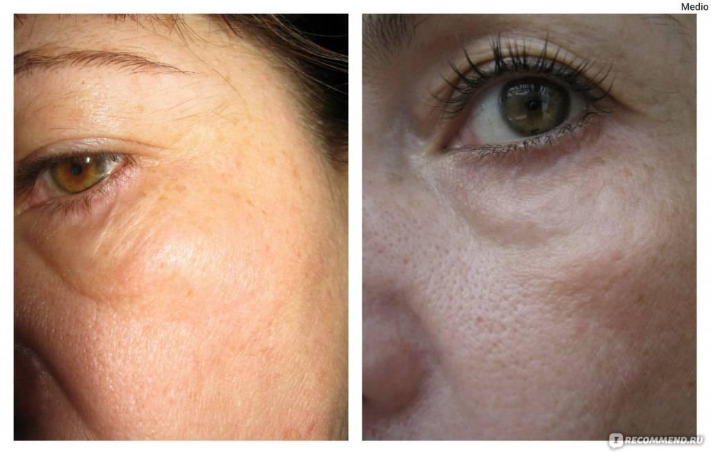 Малярные мешки под глазами: почему появляются и как их убрать?