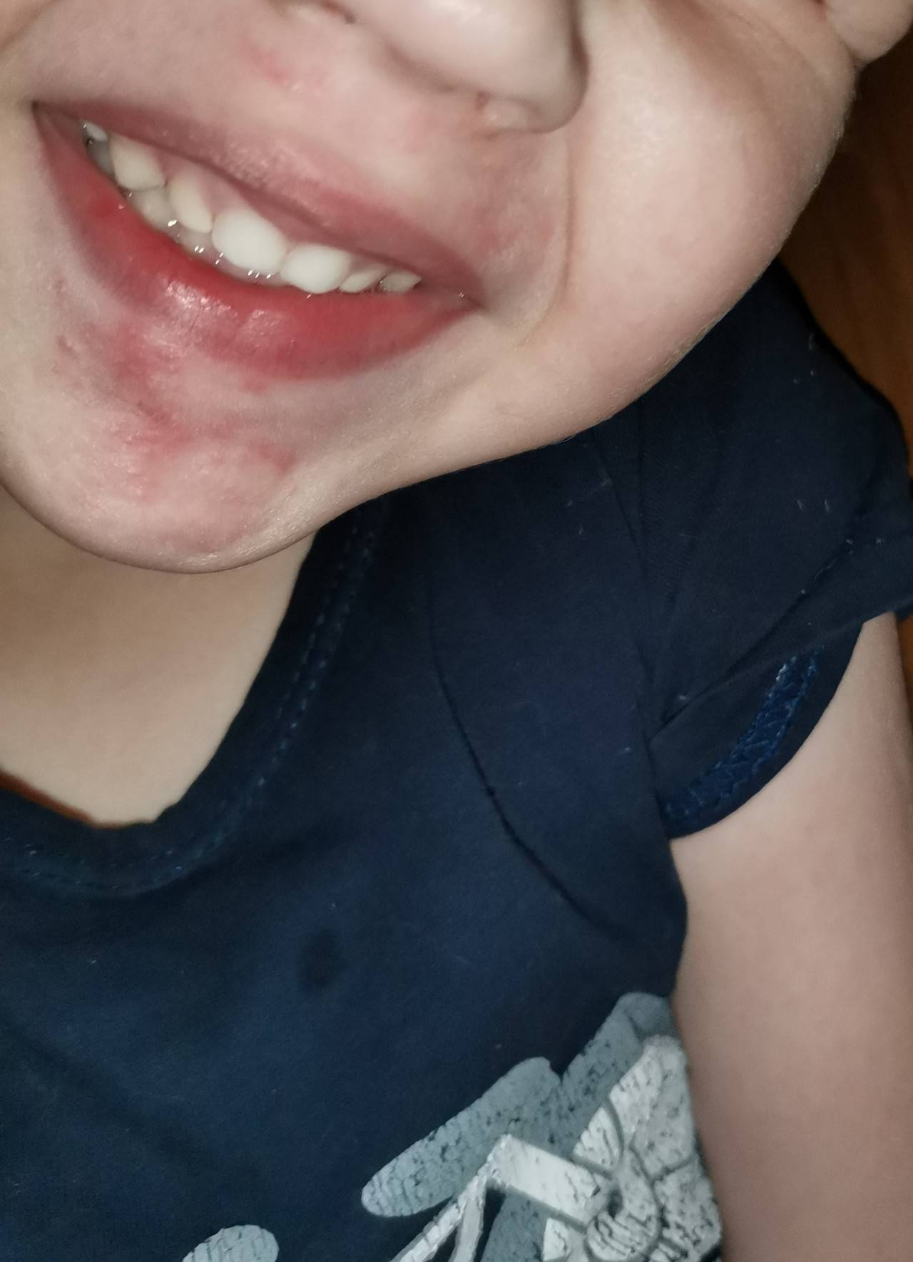 Сыпь и раздражение вокруг рта у ребенка: причины и лечение