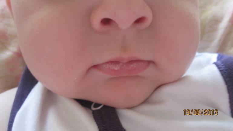 Причины возникновения мозолей и волдырей на губе у новорожденного