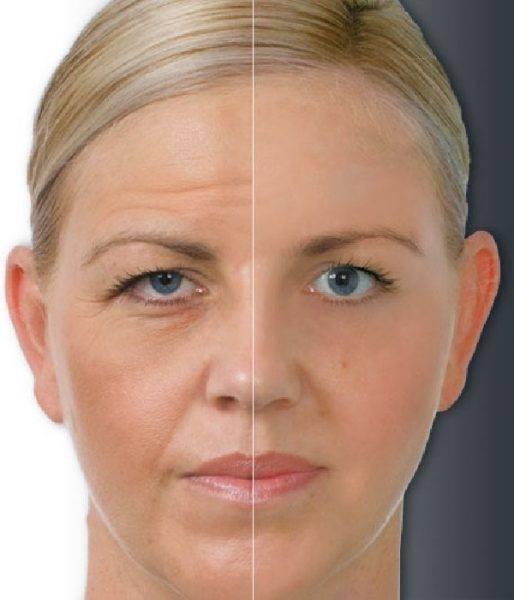 Описание последствий ботокса: фото до и после процедуры