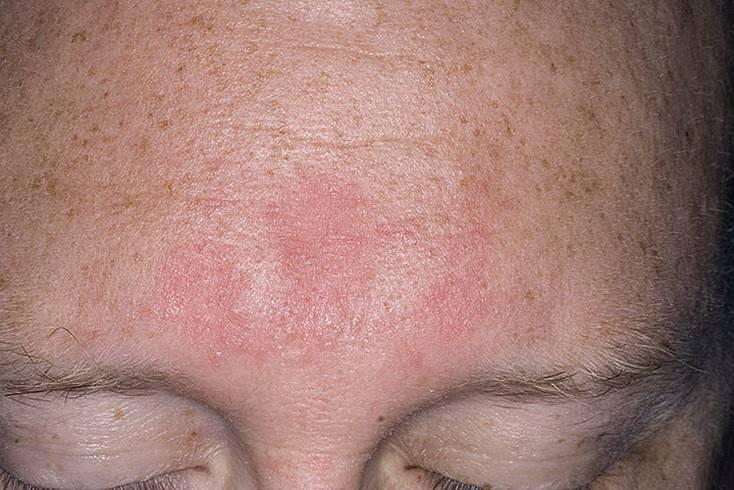 Что делать, если шелушатся брови? определяем причины и тактику лечения