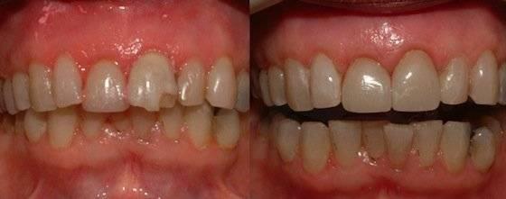 Коронки на передние зубы