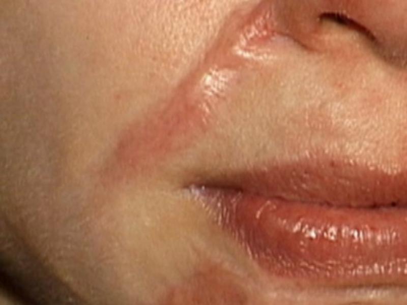 Обзор эффективных кремов для восстановления кожи после ожога