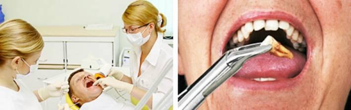 Можно ли пить после лечения зуба
