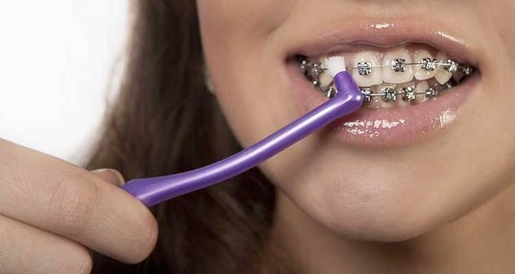 Можно ли и как целоваться с брекетами на зубах