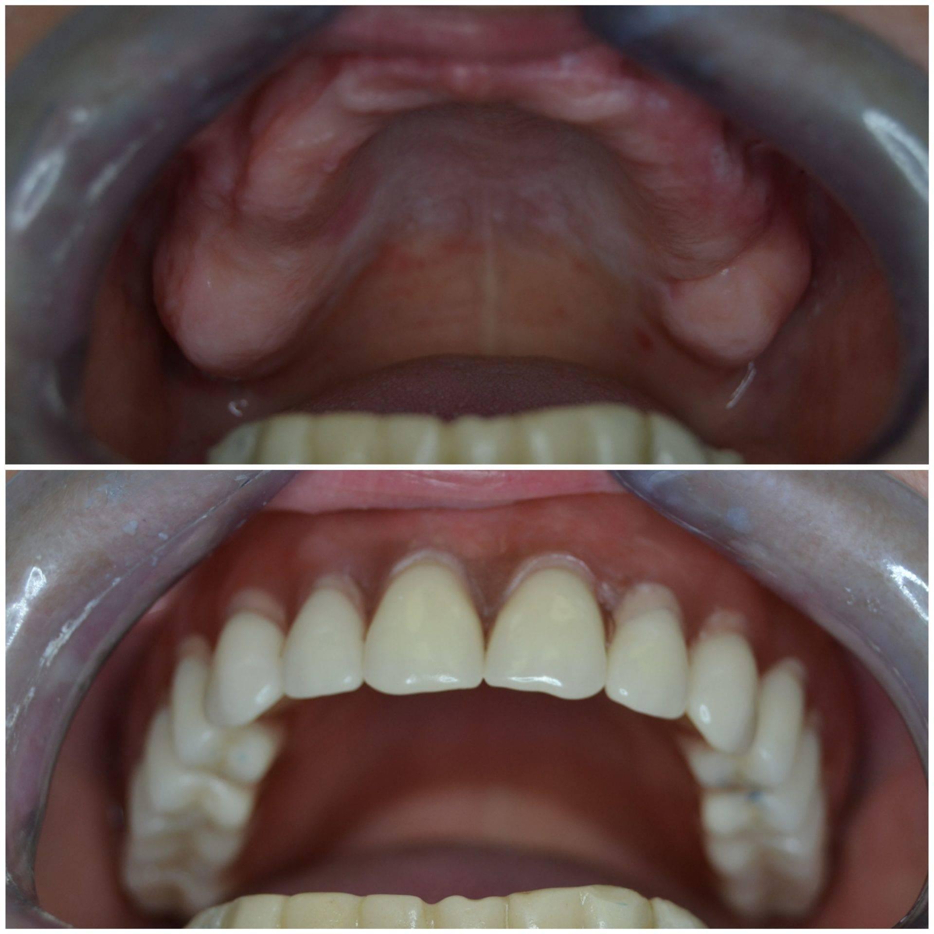 Что делать, если появились первые признаки аллергии на зубные протезы?