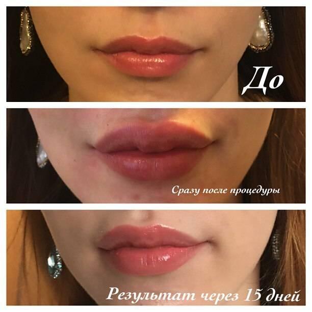 Биополимер в губы: преимущества и недостатки метода коррекции формы