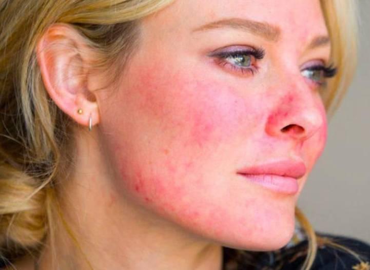 Топ 10 правил ухода за чувствительной кожей с розацеа